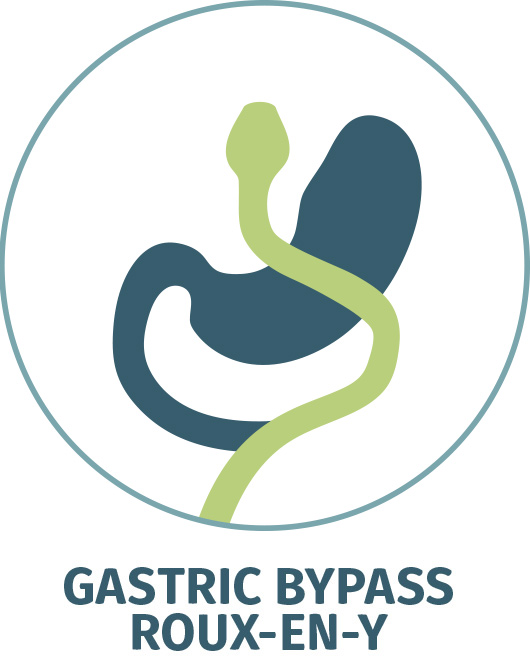 RNY Gastric Bypass, Roux-en-Y Gastric Bypass